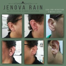 Ear Lobe Reconstruction Clinic Midlands UK