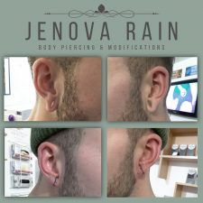 Ear Lobe Reconstruction by Jenova Rain in Leicester