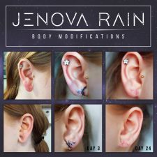 Ear Lobe Reconstruction by Jenova Rain UK