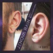 Ear Lobe Hole Reconstruction UK by Jenova Rain