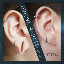 Stretched Ear Lobe Hole Repair UK by Jenova Rain