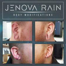 Ear Lobe Reconstruction UK