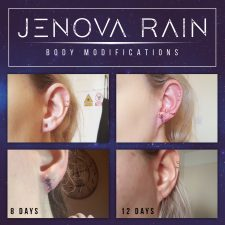 Ear Lobe Reconstruction UK Jenova Rain
