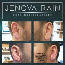 Ear Lobe Reduction UK