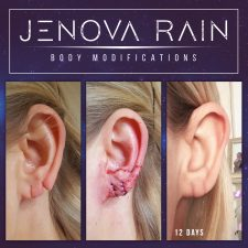 Ear Lobe Split Repair UK
