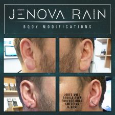 Ear Lobe Reduction by Jenova Rain in Leicester