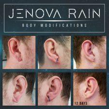 Ear Lobe Reconstruction by Jenova Rain in Leicester