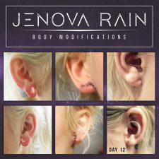 Ear Lobe Repair by Jenova Rain UK