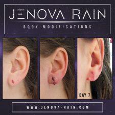 Ear Lobe Stitched closed
