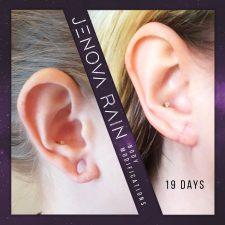 Ear Lobe Reconstruction UK by Jenova Rain