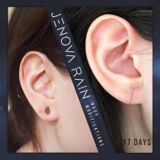 Ear Lobe Repair UK by Jenova Rain