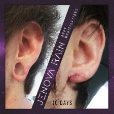 Stretched Ear Lobe Repair UK by Jenova Rain