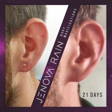 Damaged Ear Lobe Repair UK by Jenova Rain