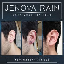 Before and after healed photos of surgery procedure to fix stretched ear lobes