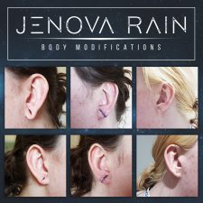 Ear Lobe Reconstruction UK Specialist Jenova Rain