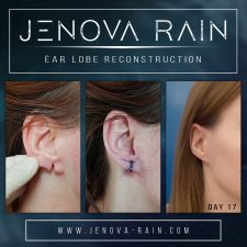 Ear Lobe Reconstruction