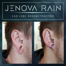 Ear lobe repair for stretched damaged ears before and after healed photos by jenova rain in leicester UK