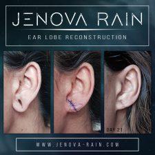 Ear Lobe Reconstruction