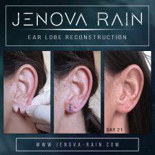 ear lobe reconstruction uk jenova rain