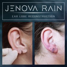 ear_lobe_reconstruction_2307