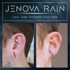 ear_lobe_reconstruction_2314