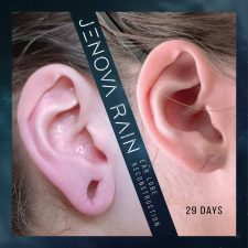 ear_lobe_reconstruction_2324