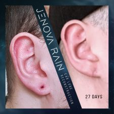 ear_lobe_reconstruction_2326