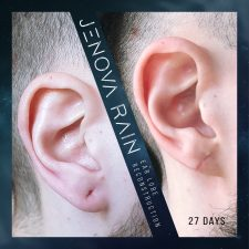 ear_lobe_reconstruction_2329