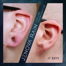 ear_lobe_reconstruction_2335