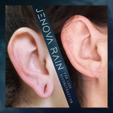 ear_lobe_reconstruction_2339