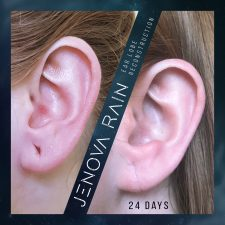 ear_lobe_reconstruction_2344
