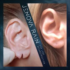ear_lobe_reconstruction_2345