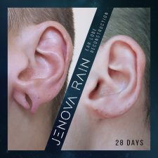 ear_lobe_reconstruction_2348