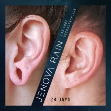 ear_lobe_reconstruction_2349