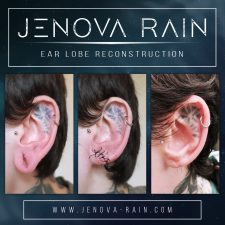 ear_lobe_reconstruction_2357