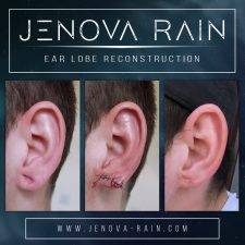 ear_lobe_reconstruction_2362