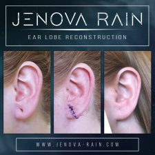 ear_lobe_reconstruction_2363