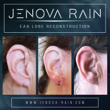ear_lobe_reconstruction_2365