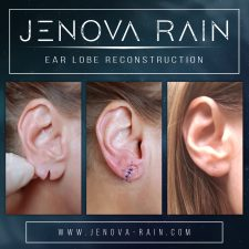 ear_lobe_reconstruction_2366